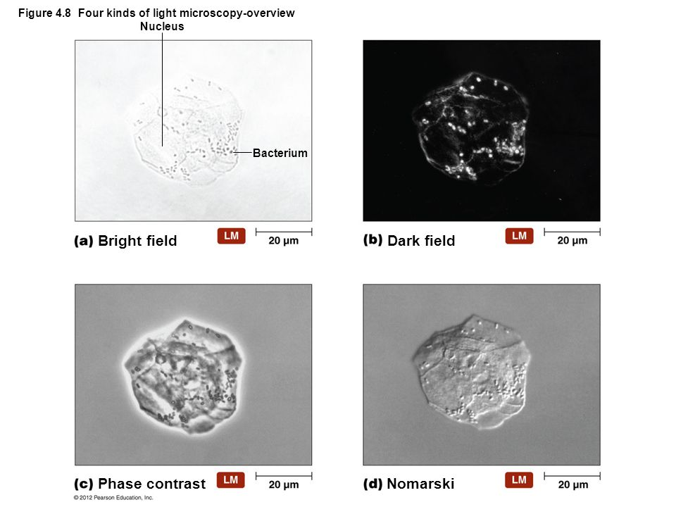 Bright field Bacterium Nucleus Phase contrast Dark field Nomarski Figure 4.8 Four kinds of light microscopy-overview