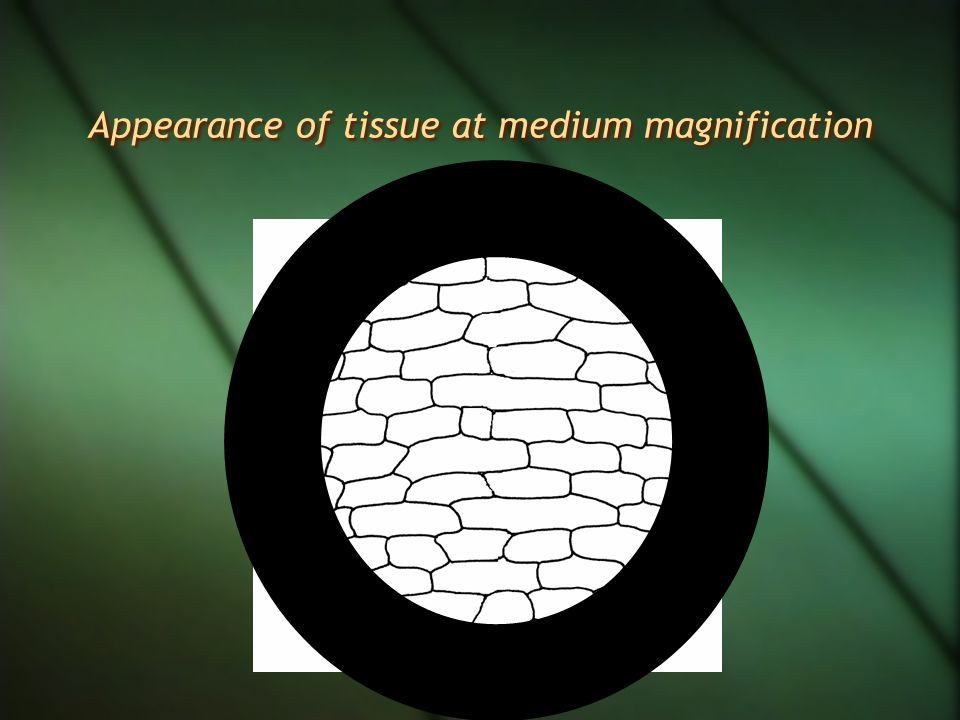 Appearance of ruler at medium magnification