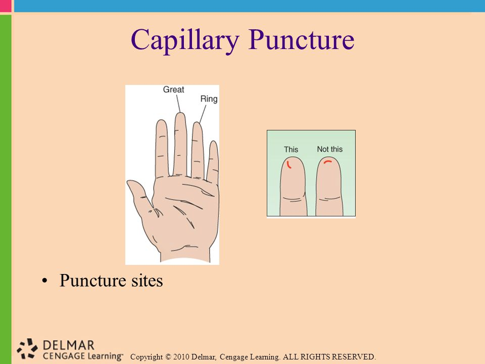 Copyright © 2010 Delmar, Cengage Learning. ALL RIGHTS RESERVED. Capillary Puncture Puncture sites
