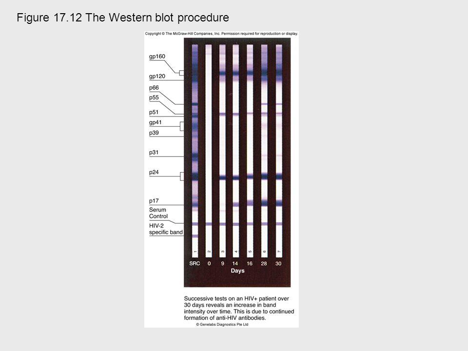 Figure 17.12 The Western blot procedure