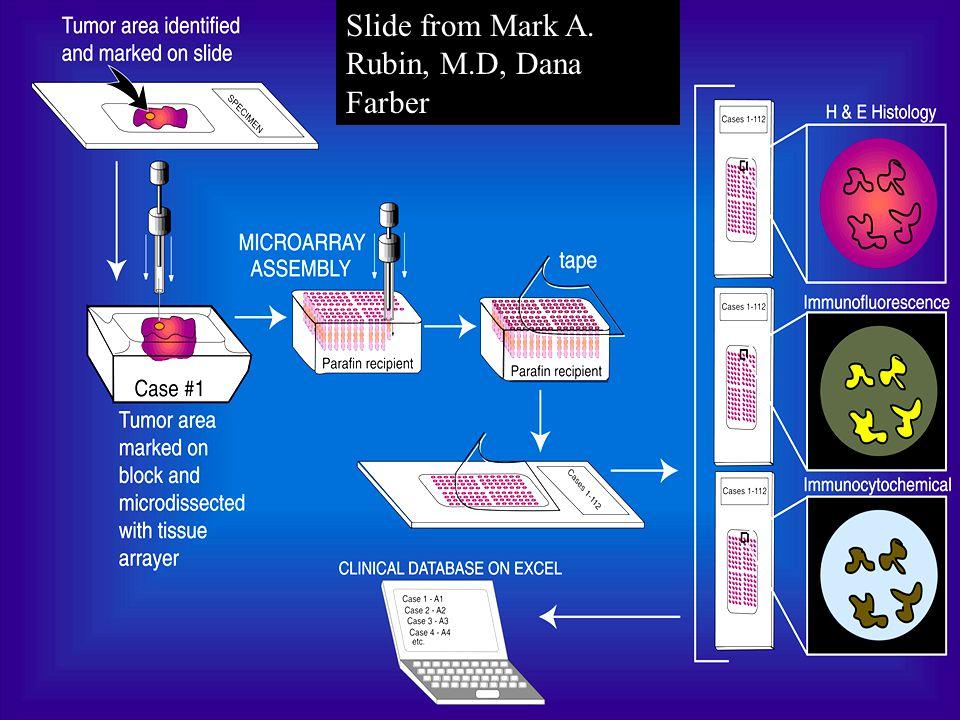 Slide from Mark A. Rubin, M.D, Dana Farber