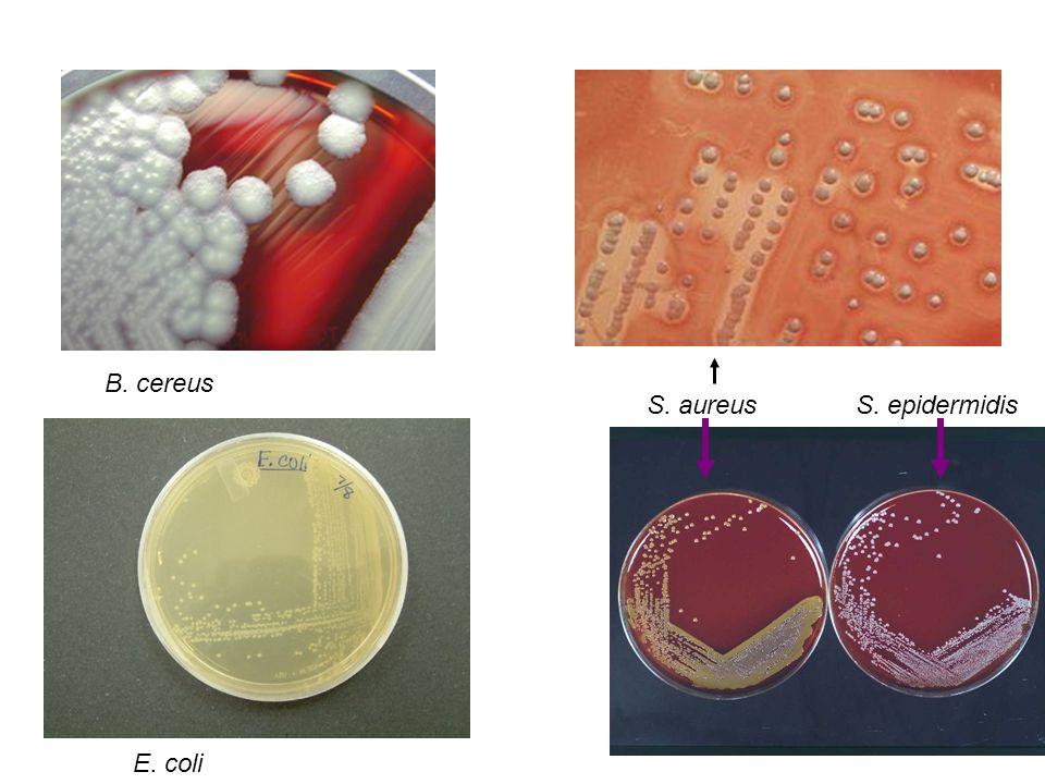 E. coli B. cereus S. aureusS. epidermidis