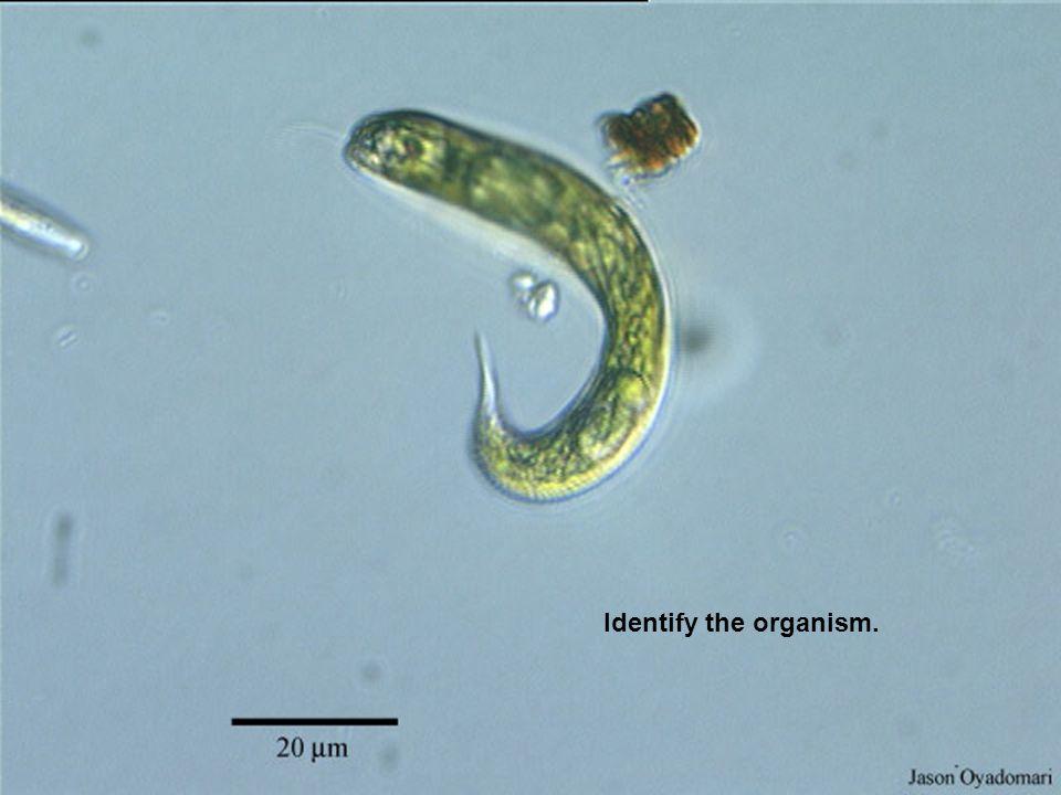 Identify the organism.