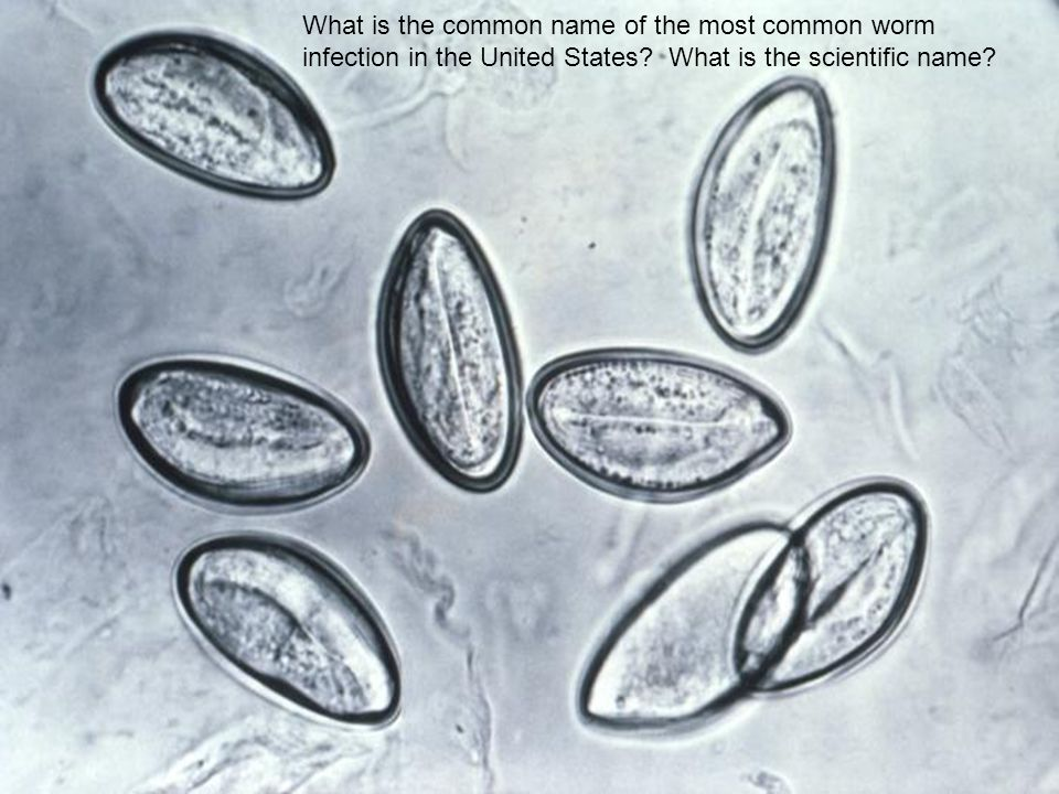 What is the common name of the most common worm infection in the United States.