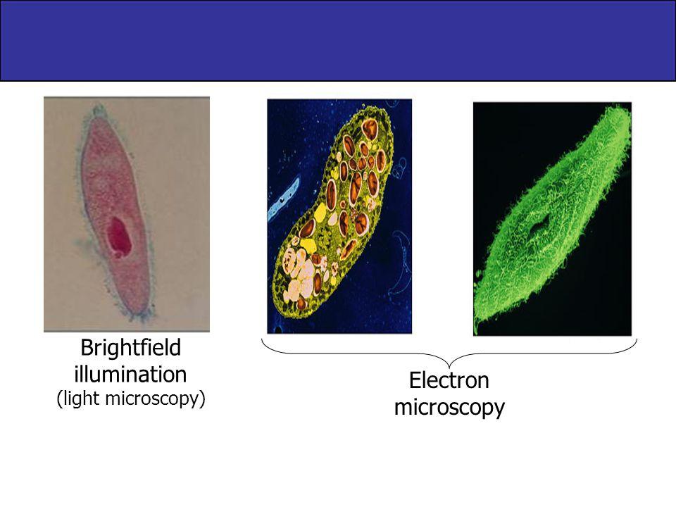 Brightfield illumination (light microscopy) Electron microscopy