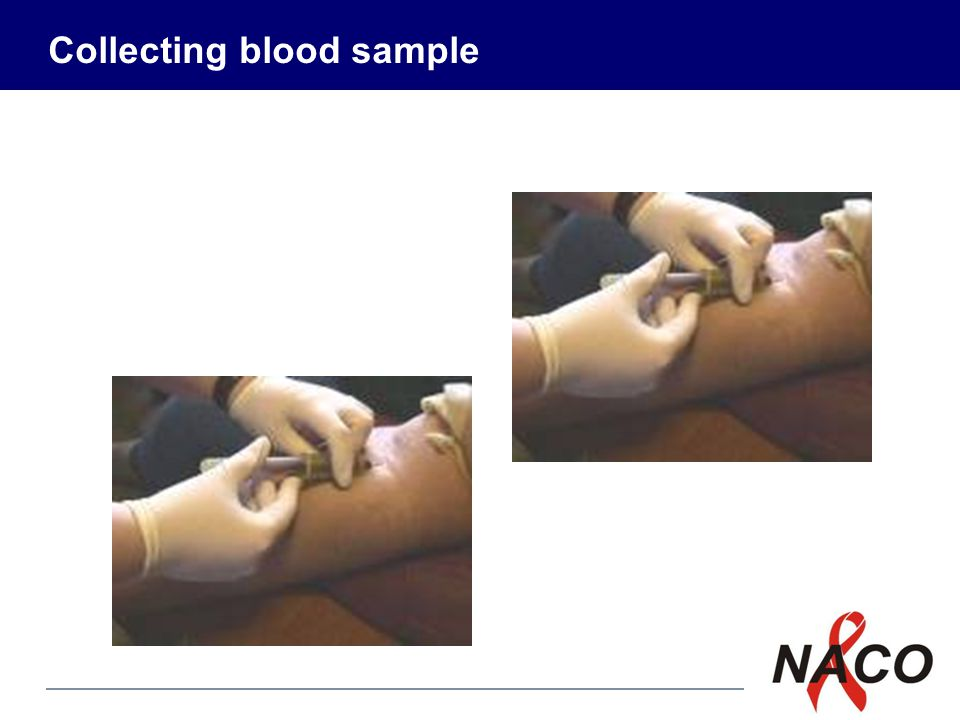 P8 16 Procedure for drawing blood Introduce yourself and identify the patient (this is the most important point in specimen collection) Prepare the equipment (needles, tubes, etc.) Label the vials and verify the same with the patient identification Wash hands and wear gloves Prepare the patient (explain the procedure) 1 2 3 4 5