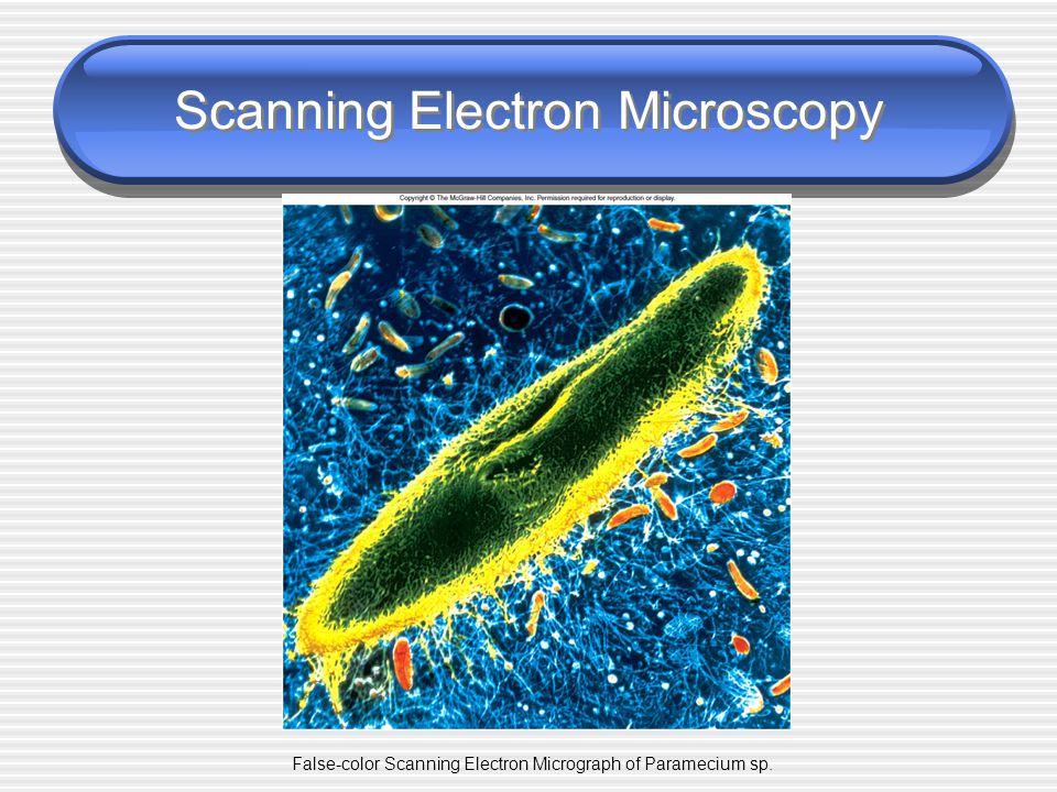 Transmission Electron Microscopy Transmission Electron Micrograph of (a) a virus and (b) a protozoan.