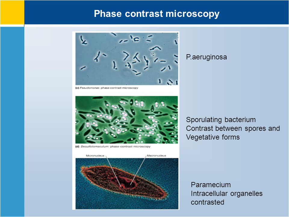 Phase contrast microscopy P.aeruginosa Sporulating bacterium Contrast between spores and Vegetative forms Paramecium Intracellular organelles contrasted