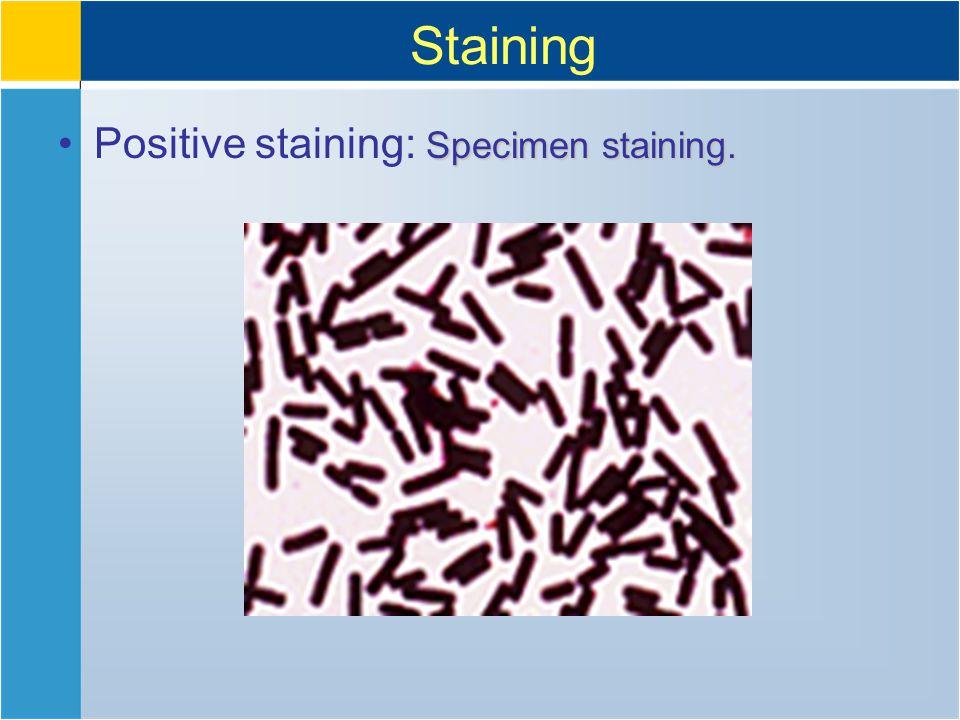 Staining Specimen staining.Positive staining: Specimen staining.