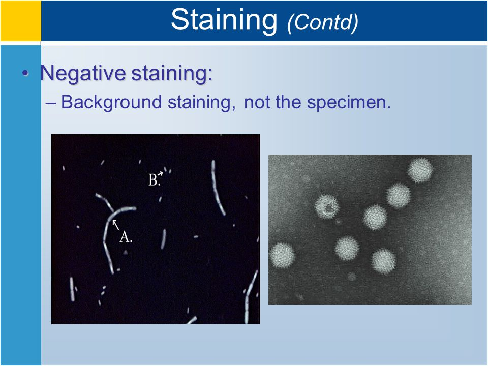 Staining (Contd) Negative staining:Negative staining: –Background staining, not the specimen.