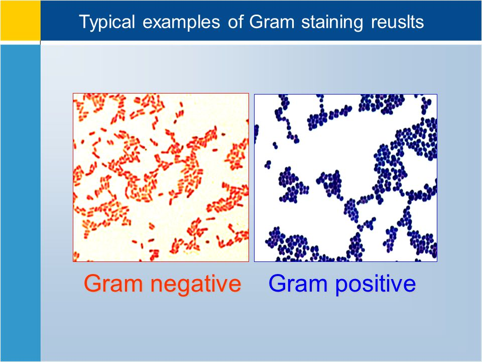 Gram negative Gram positive Typical examples of Gram staining reuslts