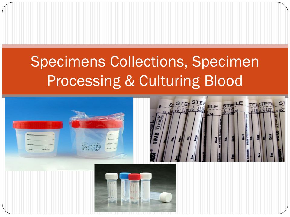 Specimen Definition Any substance which is taken from body of a person for testing in the laboratory is called specimen.