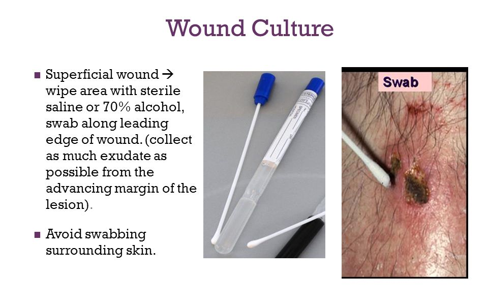 Wound Culture Superficial wound  wipe area with sterile saline or 70% alcohol, swab along leading edge of wound. (collect as much exudate as possible