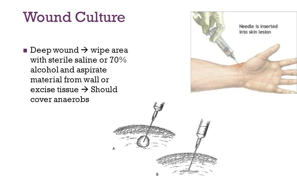 Wound Culture Deep wound  wipe area with sterile saline or 70% alcohol and aspirate material from wall or excise tissue  Should cover anaerobs