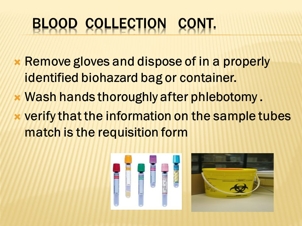  Remove gloves and dispose of in a properly identified biohazard bag or container.