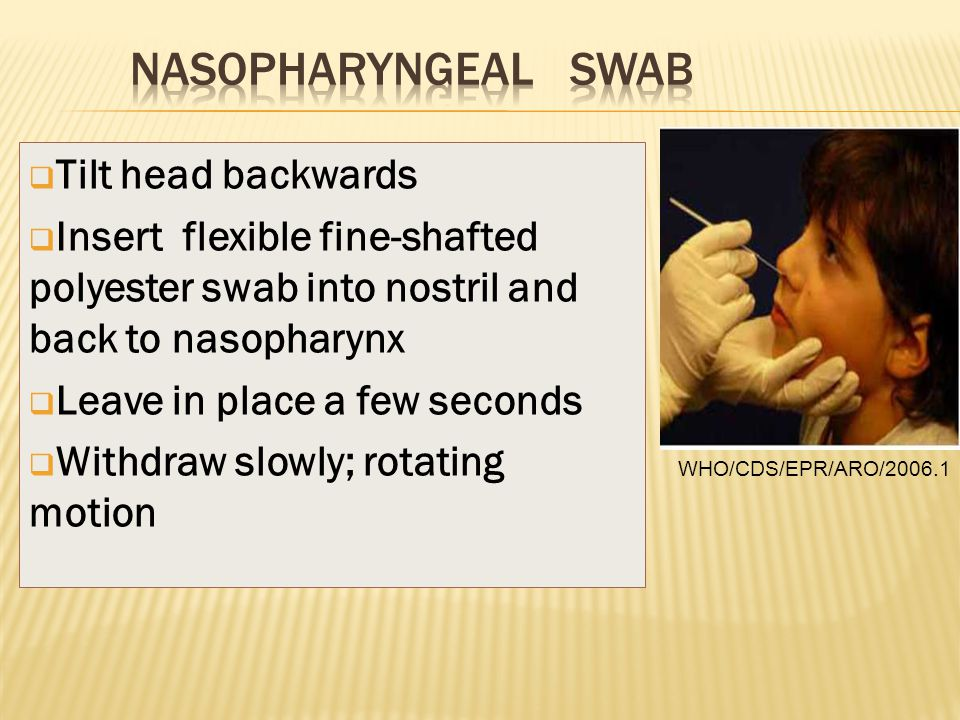  Tilt head backwards  Insert flexible fine-shafted polyester swab into nostril and back to nasopharynx  Leave in place a few seconds  Withdraw slo