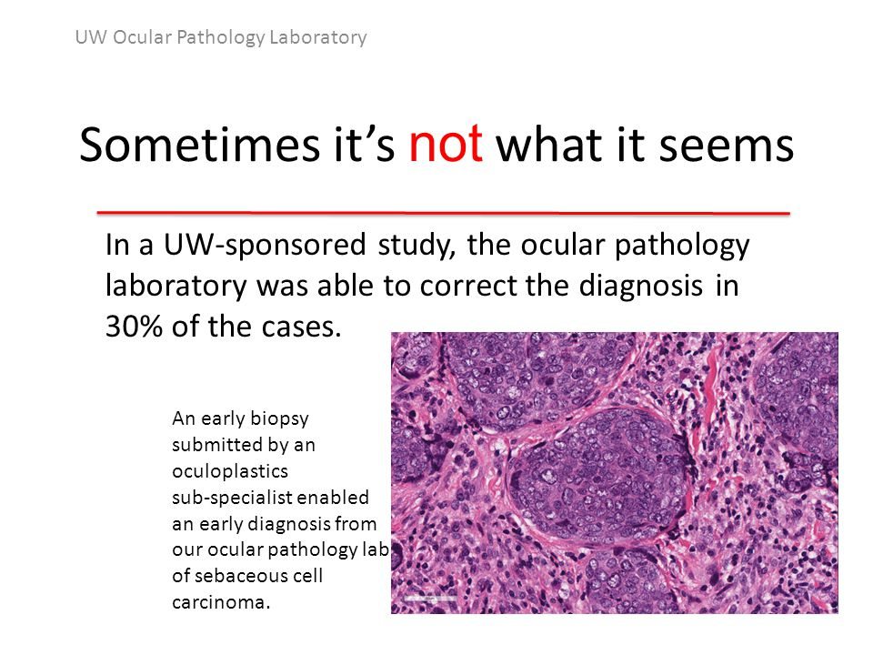 Sometimes it's not what it seems UW Ocular Pathology Laboratory In a UW-sponsored study, the ocular pathology laboratory was able to correct the diagnosis in 30% of the cases.