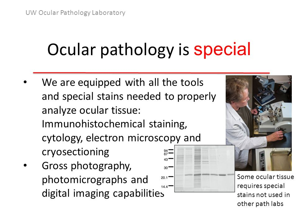 Ocular pathology is special UW Ocular Pathology Laboratory We are equipped with all the tools and special stains needed to properly analyze ocular tissue: Immunohistochemical staining, cytology, electron microscopy and cryosectioning Gross photography, photomicrographs and digital imaging capabilities Some ocular tissue requires special stains not used in other path labs