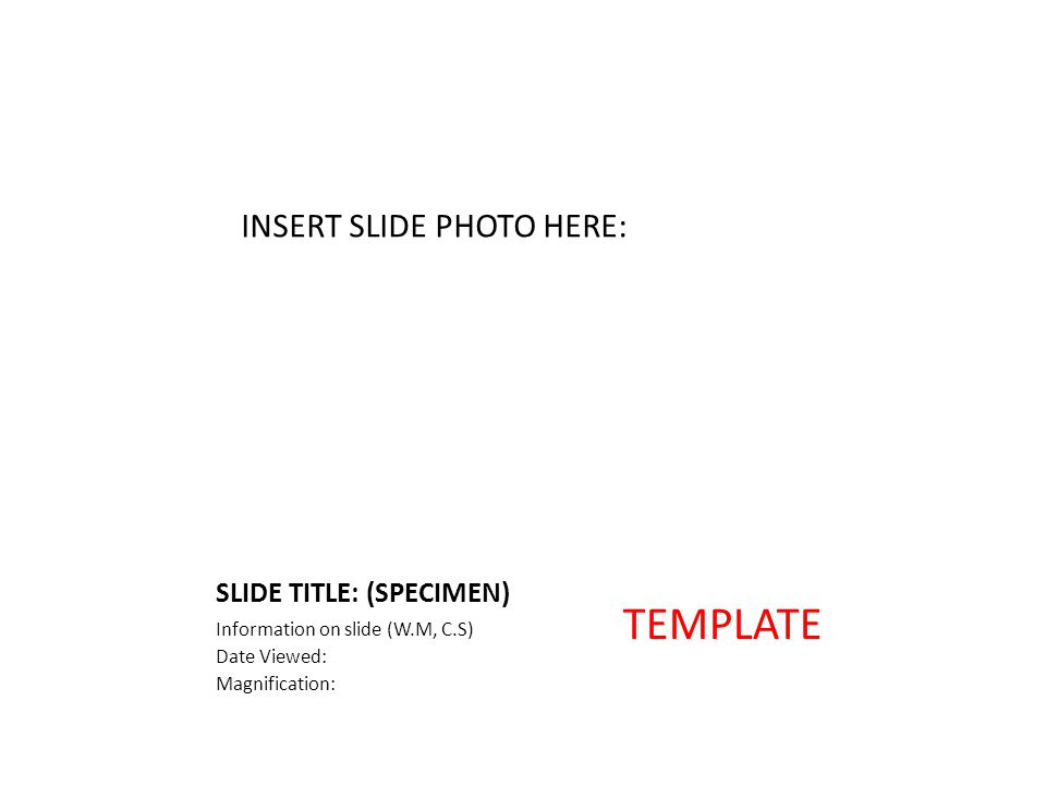 SLIDE TITLE: (SPECIMEN) Information on slide (W.M, C.S) Date Viewed: Magnification: INSERT SLIDE PHOTO HERE: TEMPLATE