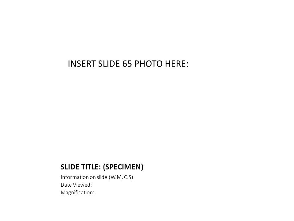 SLIDE TITLE: (SPECIMEN) Information on slide (W.M, C.S) Date Viewed: Magnification: INSERT SLIDE 65 PHOTO HERE: