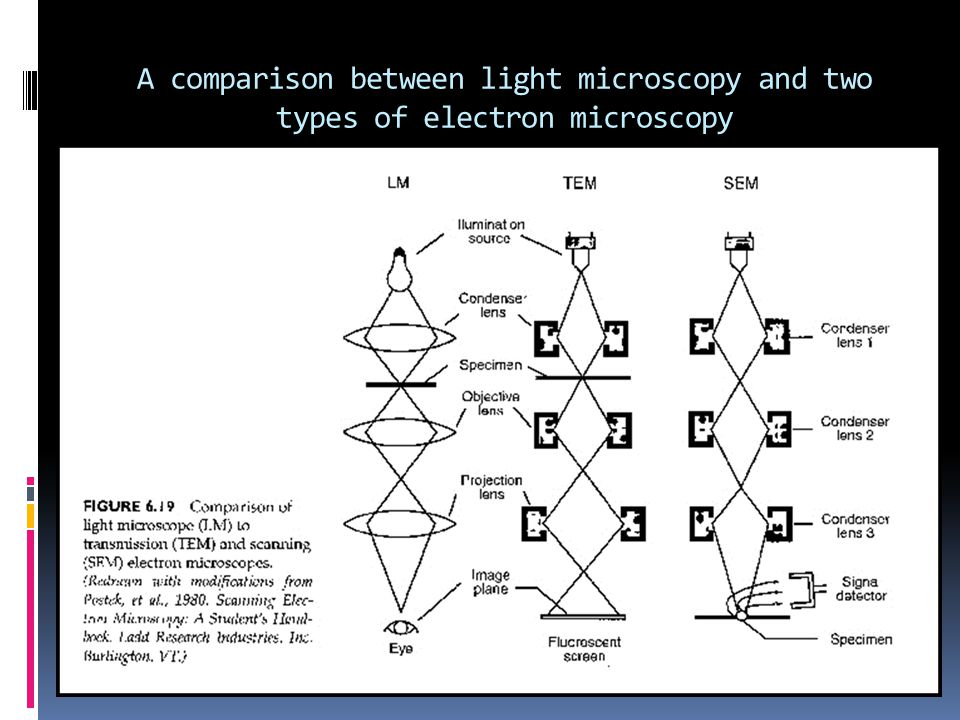A comparison between light microscopy and two types of electron microscopy