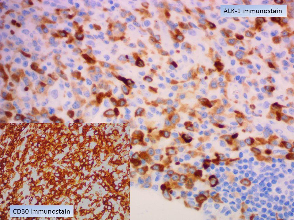 ALK-1 immunostain CD30 immunostain