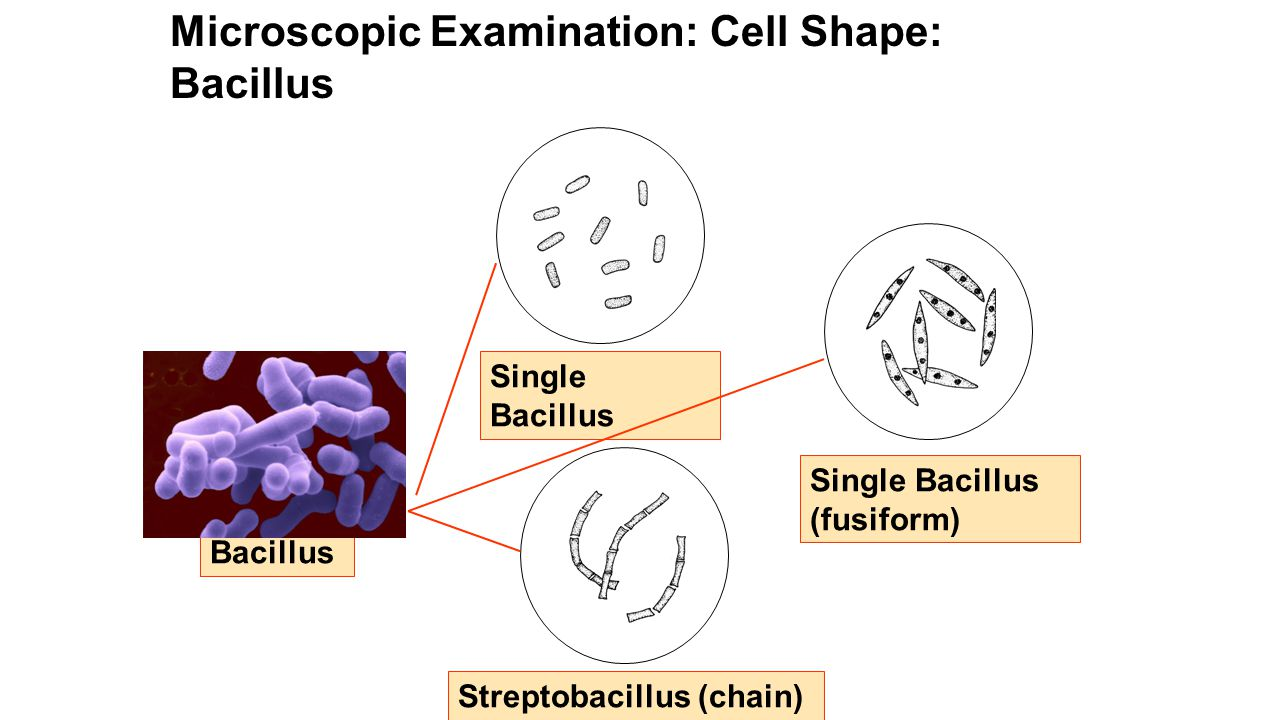 Microscopic Examination: Cell Shape: Bacillus Bacillus Single Bacillus (fusiform) Streptobacillus (chain) Single Bacillus