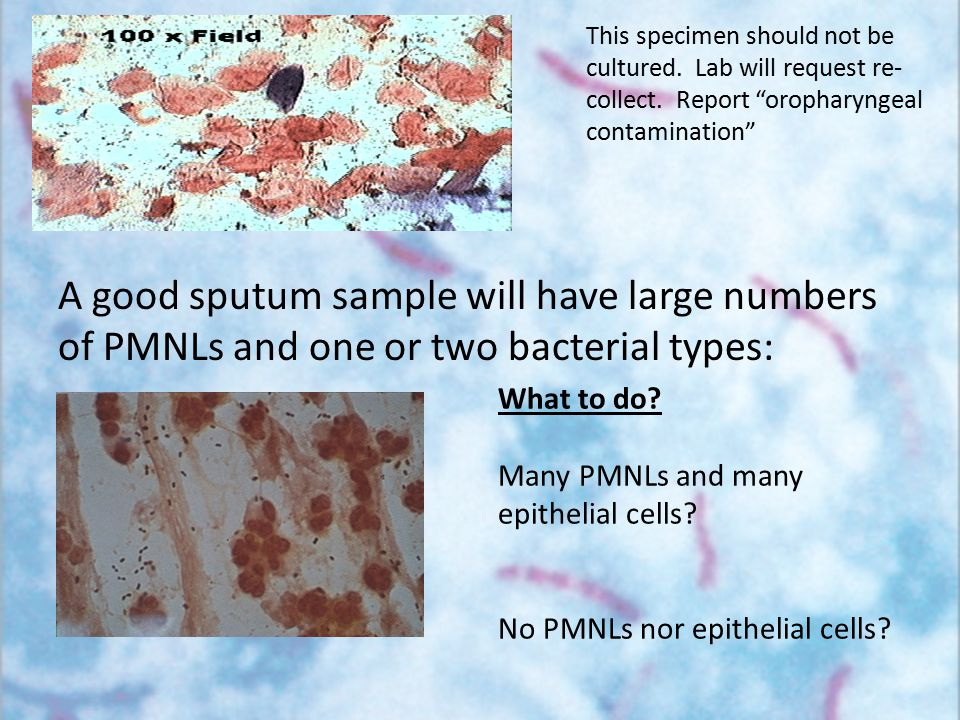 A good sputum sample will have large numbers of PMNLs and one or two bacterial types: What to do? Many PMNLs and many epithelial cells? No PMNLs nor e