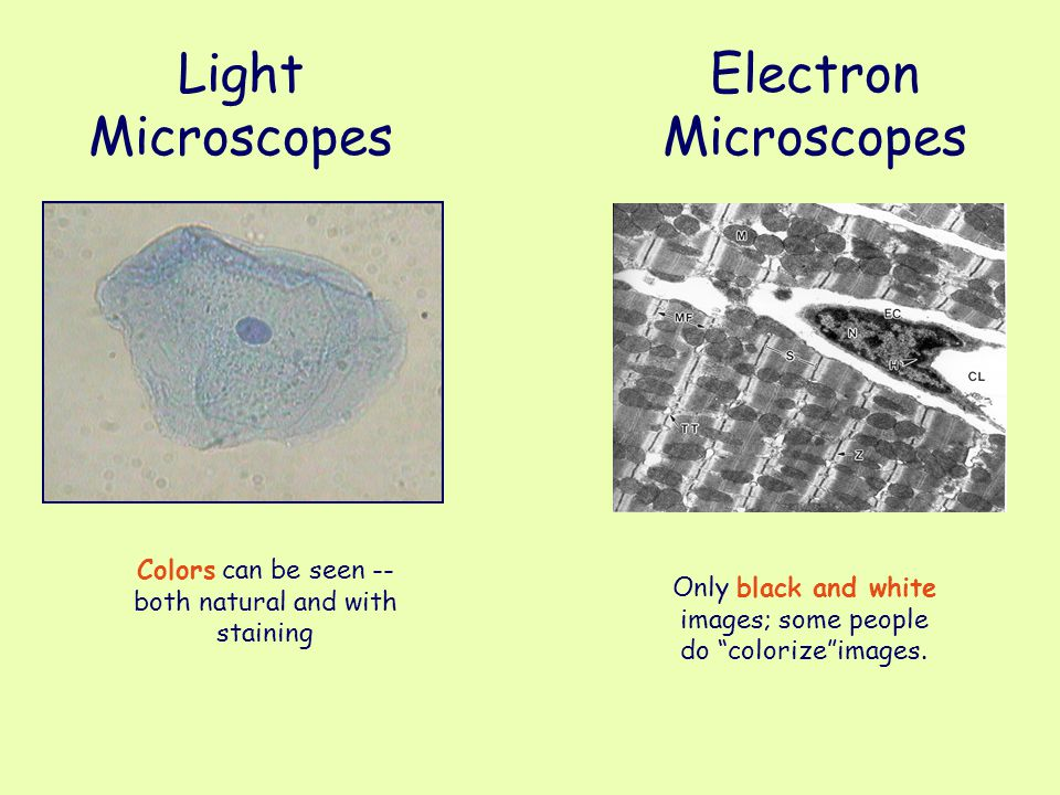 "Light Microscopes Colors can be seen -- both natural and with staining Electron Microscopes Only black and white images; some people do ""colorize""imag"