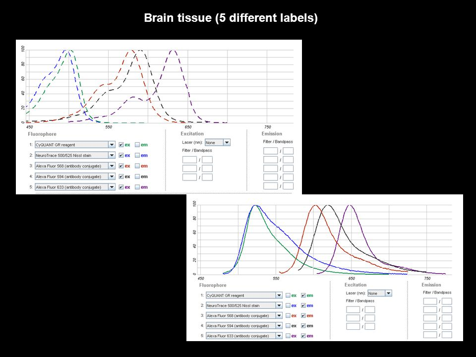 Brain tissue (5 different labels)
