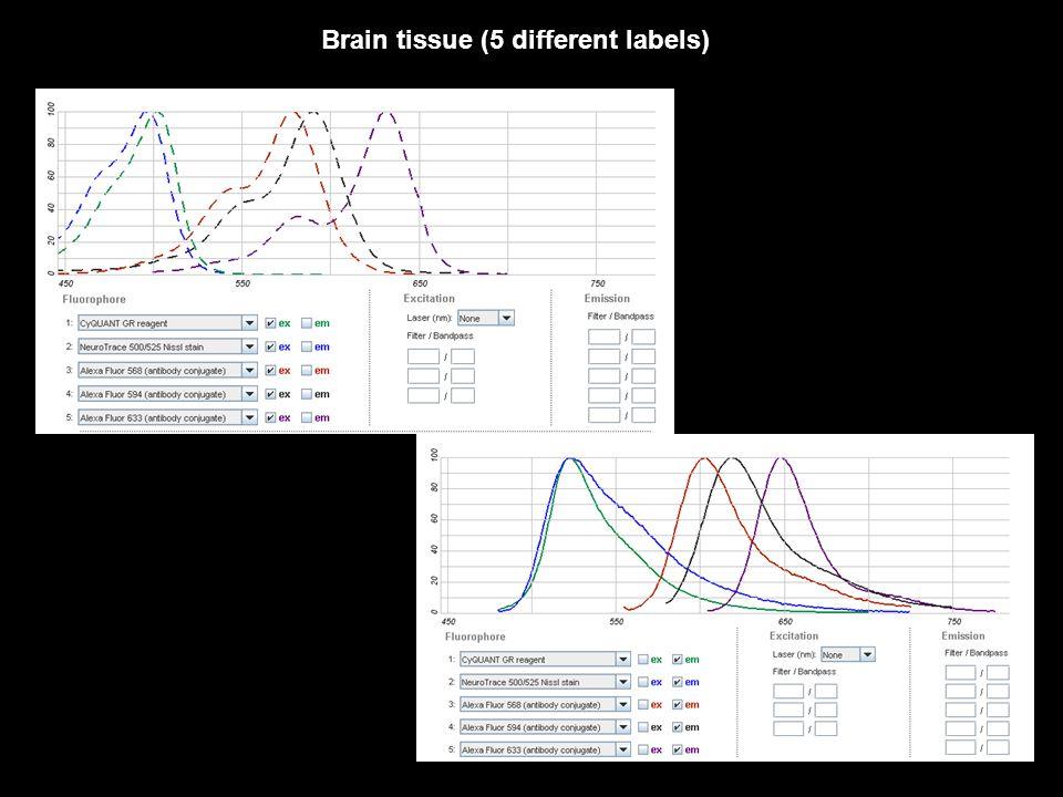 Brain tissue (5 different labels)