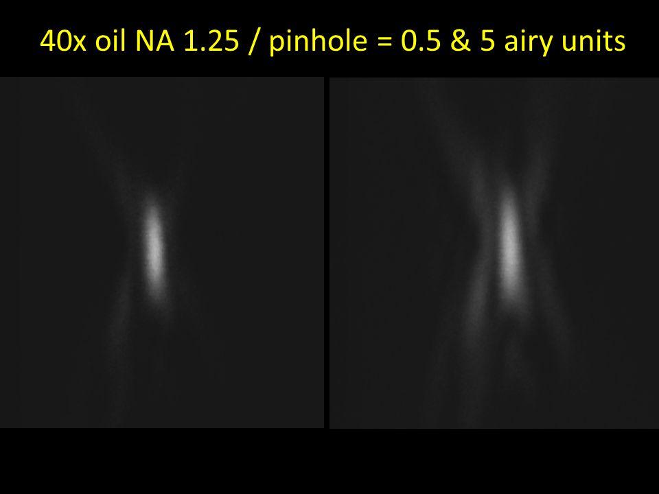 40x oil NA 1.25 / pinhole = 0.5 & 5 airy units