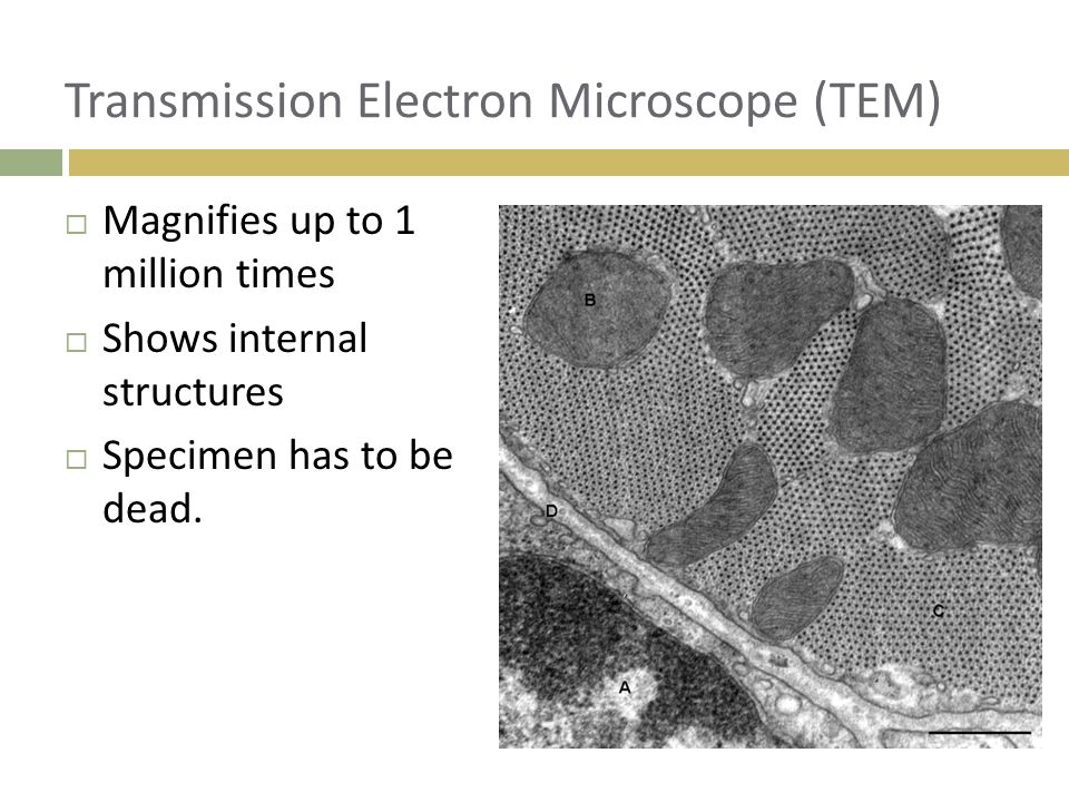 Transmission Electron Microscope (TEM)  Magnifies up to 1 million times  Shows internal structures  Specimen has to be dead.