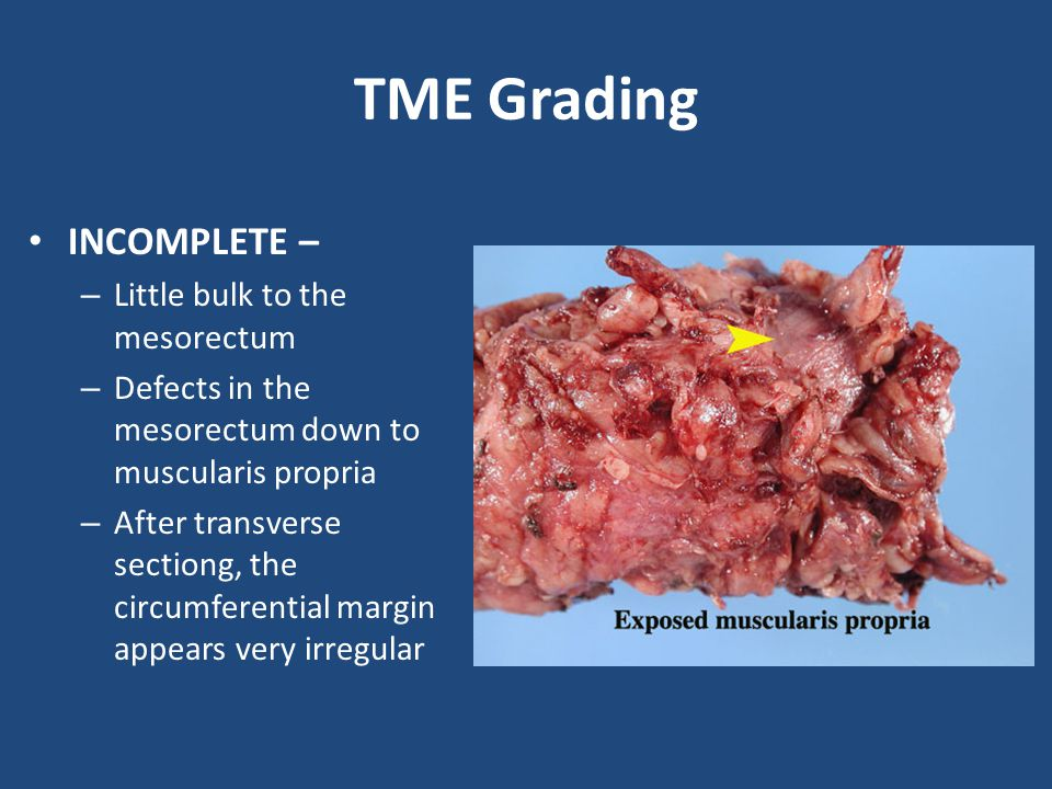 TME Grading INCOMPLETE – – Little bulk to the mesorectum – Defects in the mesorectum down to muscularis propria – After transverse sectiong, the circumferential margin appears very irregular