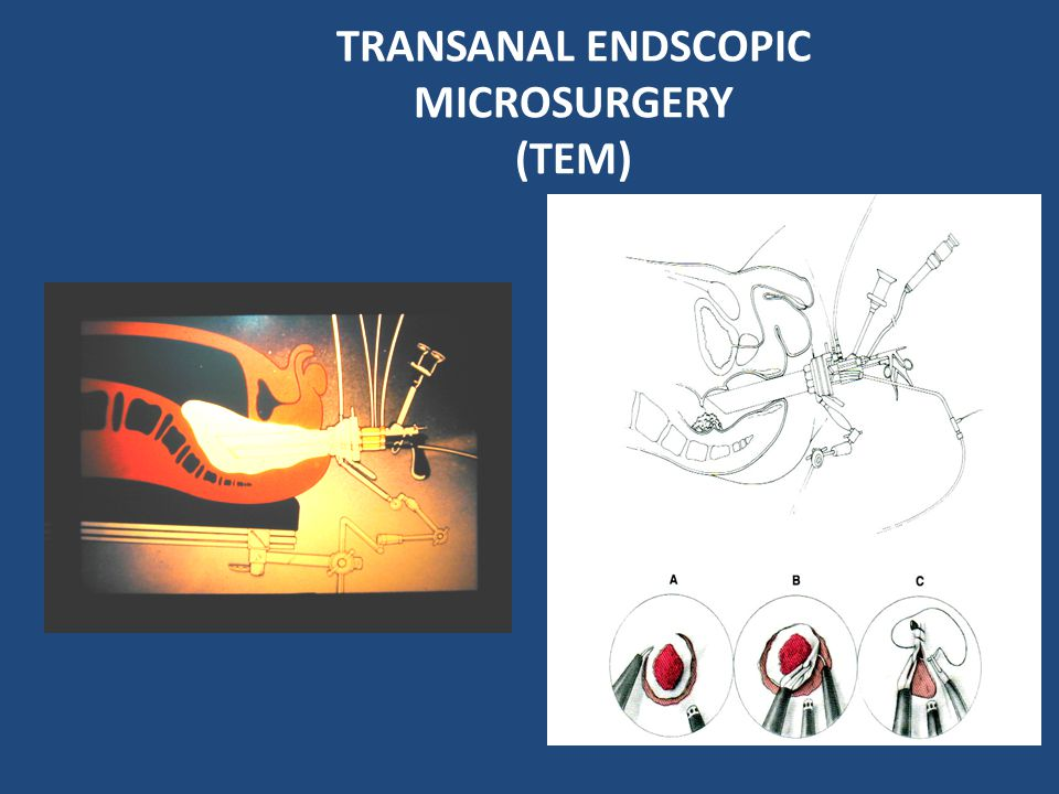 TRANSANAL ENDSCOPIC MICROSURGERY (TEM)