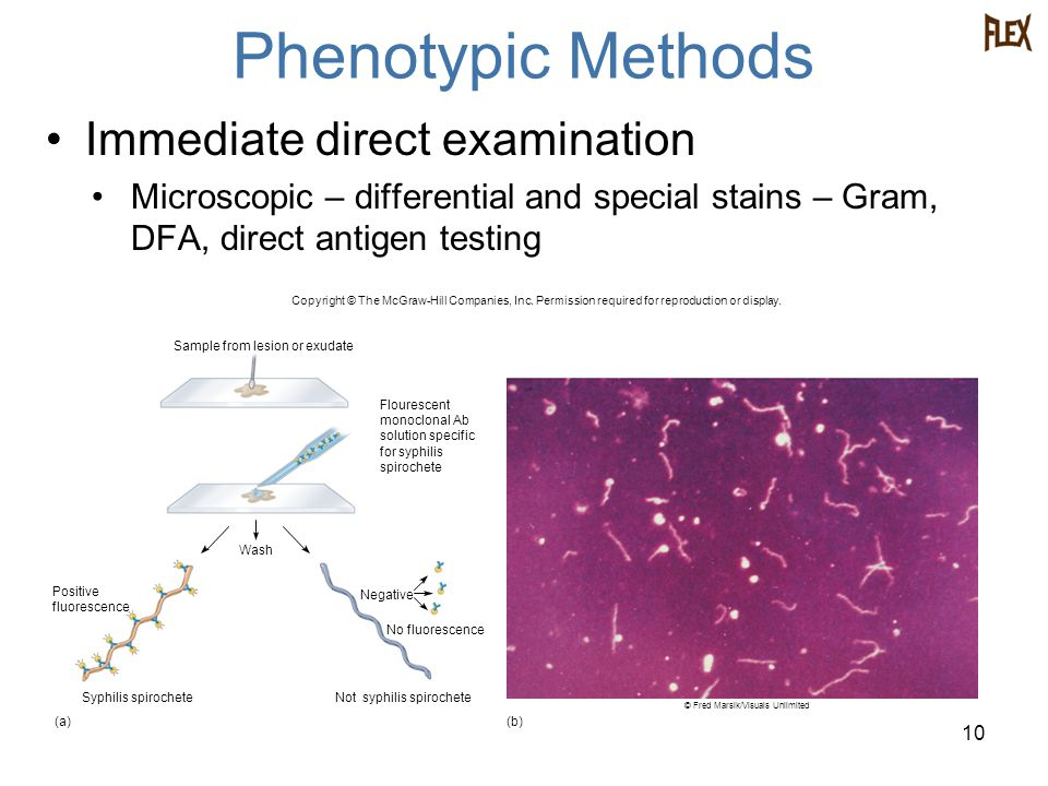 Phenotypic Methods Immediate direct examination Microscopic – differential and special stains – Gram, DFA, direct antigen testing 10 Syphilis spiroche