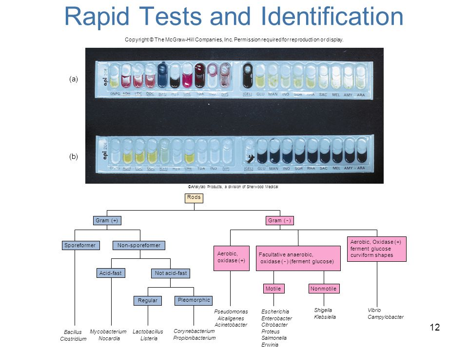 Rapid Tests and Identification 12 (a) (b) ©Analytab Products, a division of Sherwood Medical Copyright © The McGraw-Hill Companies, Inc. Permission re
