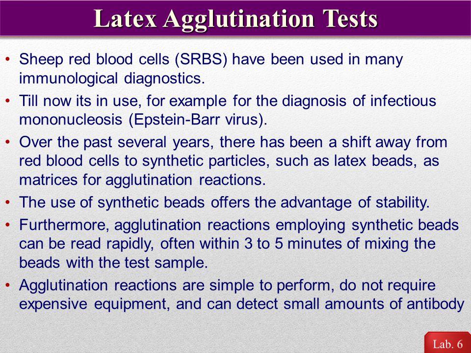 HCG Latex Agglutination Test