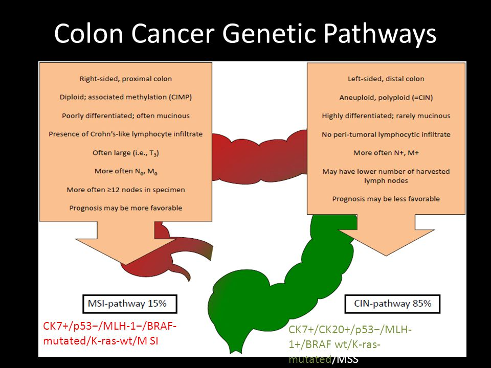 Colon Cancer Genetic Pathways CK7+/p53−/MLH-1−/BRAF- mutated/K-ras-wt/M SI CK7+/CK20+/p53−/MLH- 1+/BRAF wt/K-ras- mutated/MSS