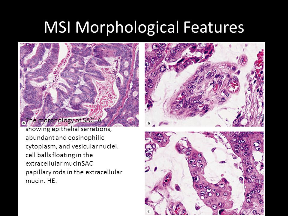 MSI Morphological Features The morphology of SAC.