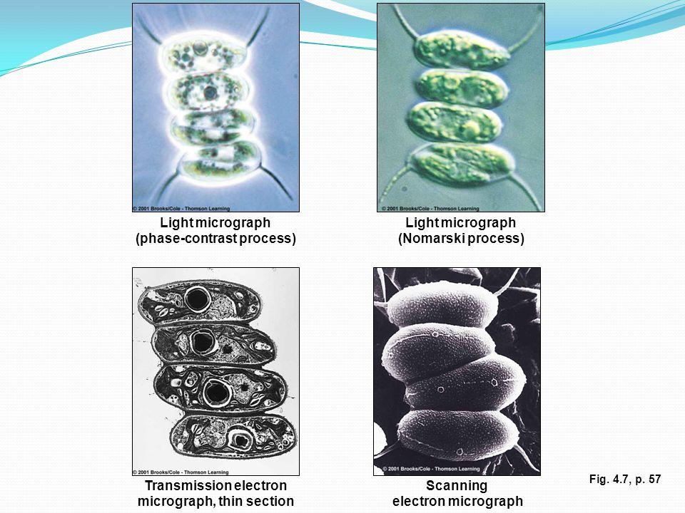 Light micrograph (phase-contrast process) Light micrograph (Nomarski process) Transmission electron micrograph, thin section Scanning electron micrograph Fig.