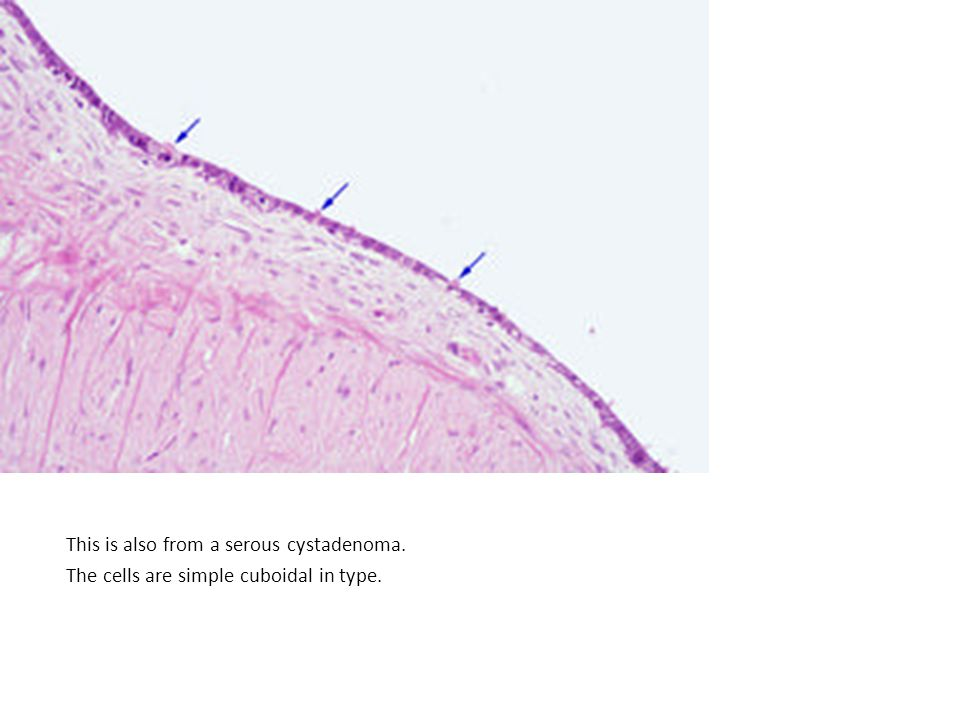 This is also from a serous cystadenoma. The cells are simple cuboidal in type.