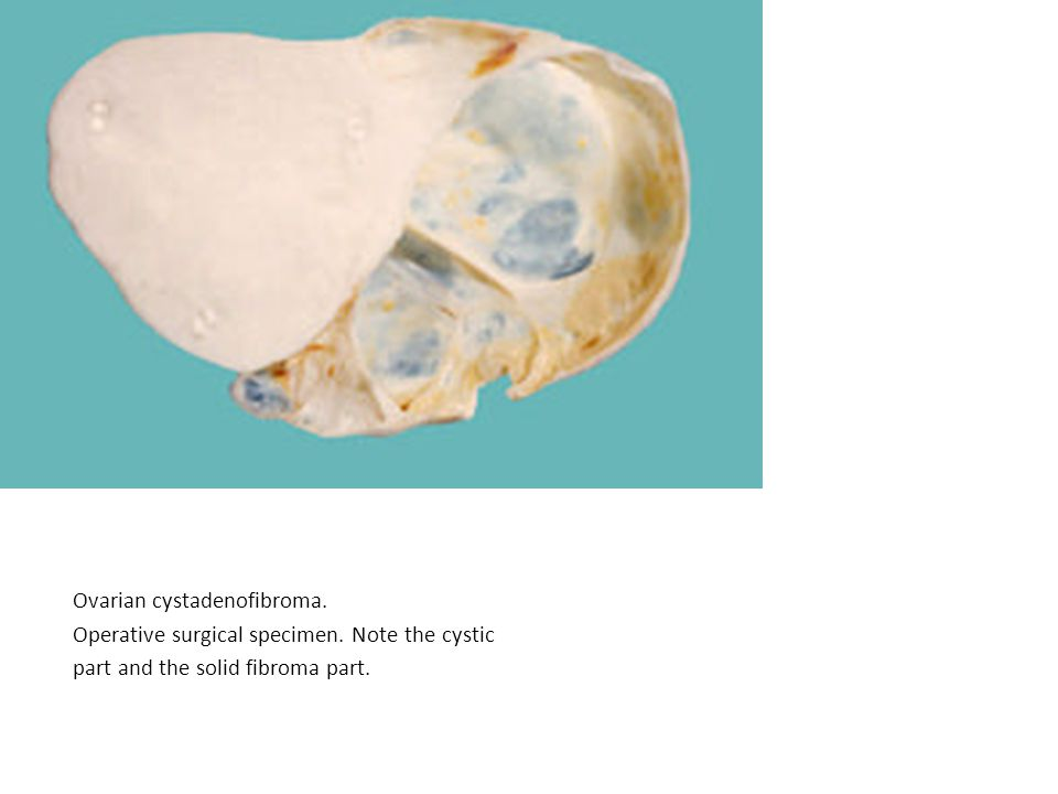 Ovarian cystadenofibroma. Operative surgical specimen. Note the cystic part and the solid fibroma part.