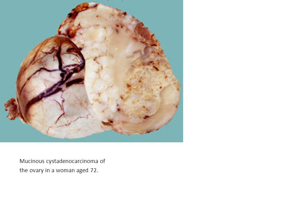 Mucinous cystadenocarcinoma of the ovary in a woman aged 72.
