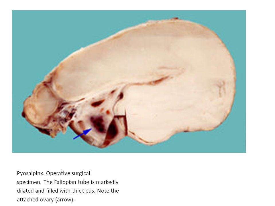 Pyosalpinx. Operative surgical specimen. The Fallopian tube is markedly dilated and filled with thick pus. Note the attached ovary (arrow).