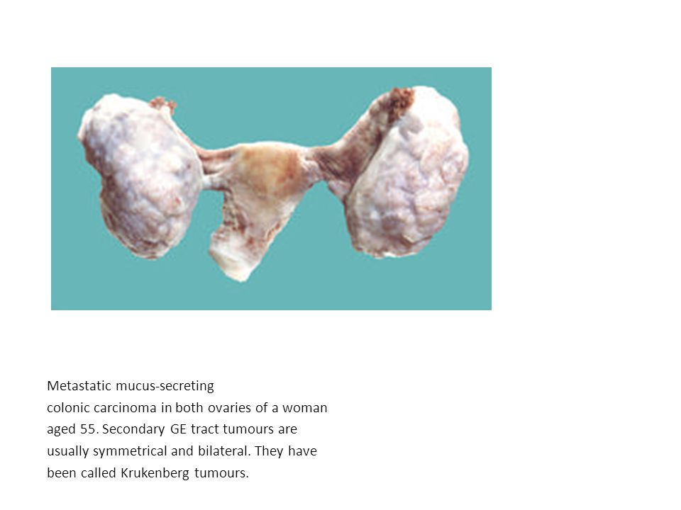Metastatic mucus-secreting colonic carcinoma in both ovaries of a woman aged 55. Secondary GE tract tumours are usually symmetrical and bilateral. The
