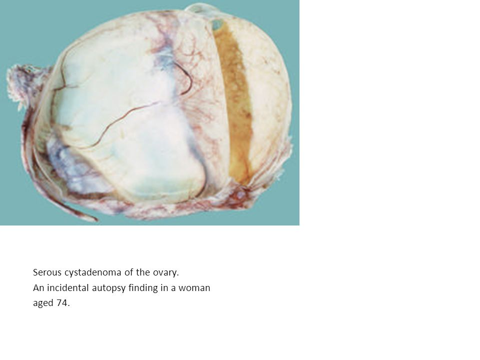 Serous cystadenoma of the ovary. An incidental autopsy finding in a woman aged 74.