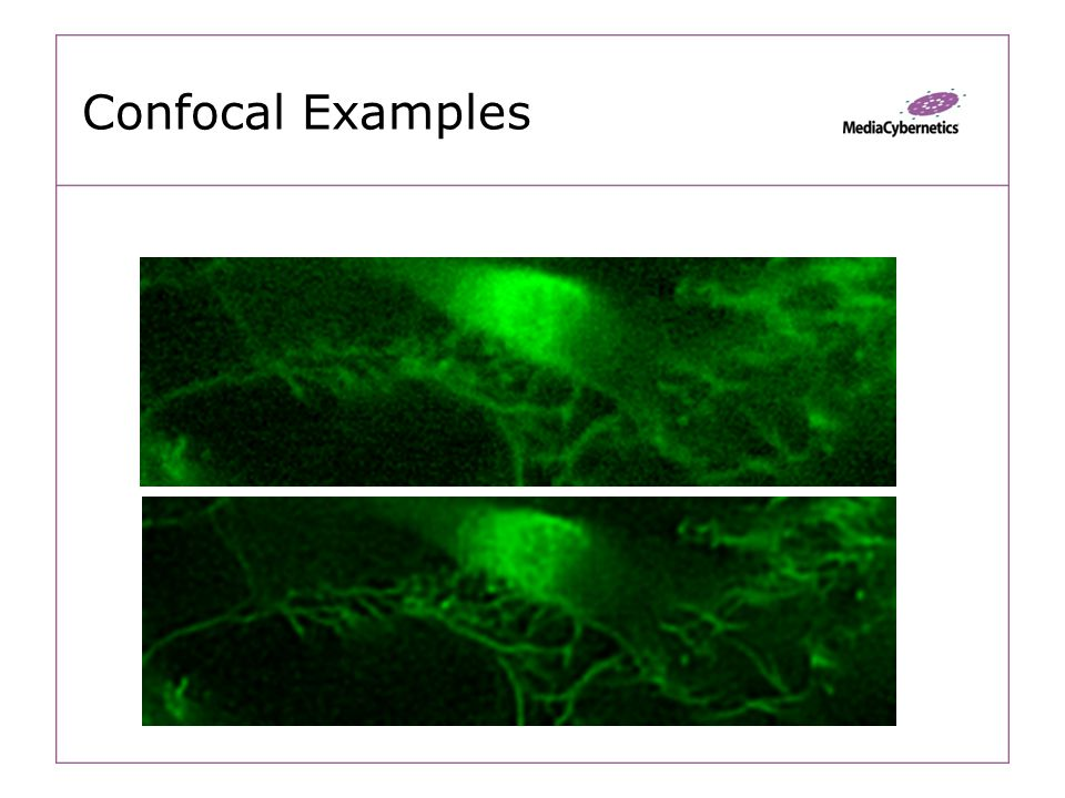 Confocal Examples