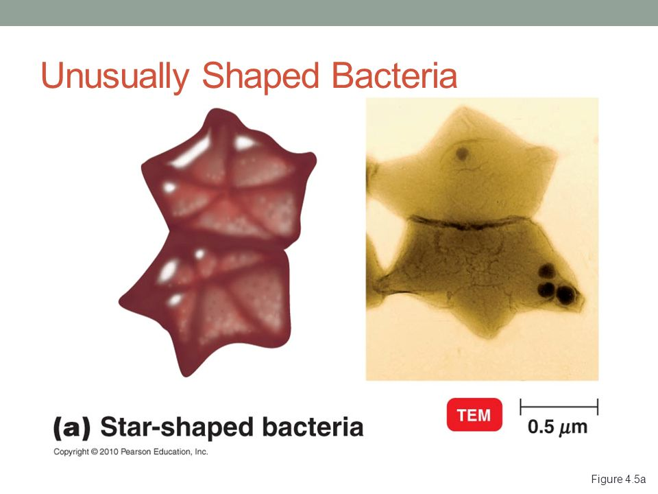 Figure 4.5a Unusually Shaped Bacteria