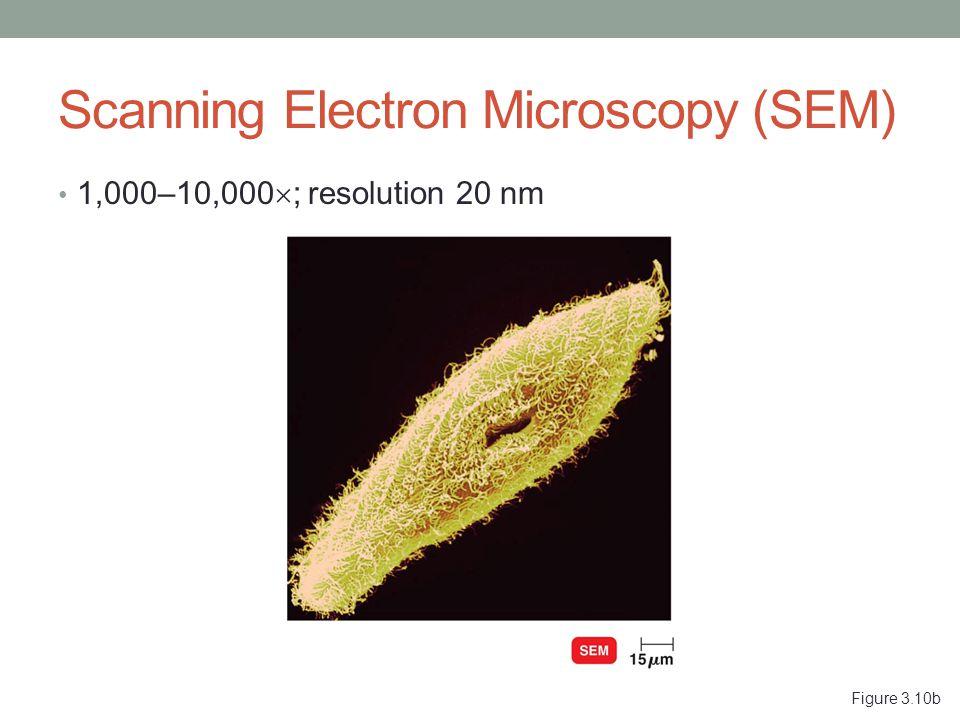 Figure 3.10b Scanning Electron Microscopy (SEM) 1,000–10,000  ; resolution 20 nm